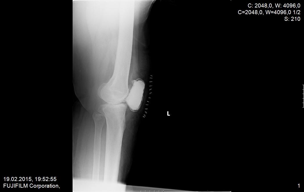 ameliyat sonrası 1