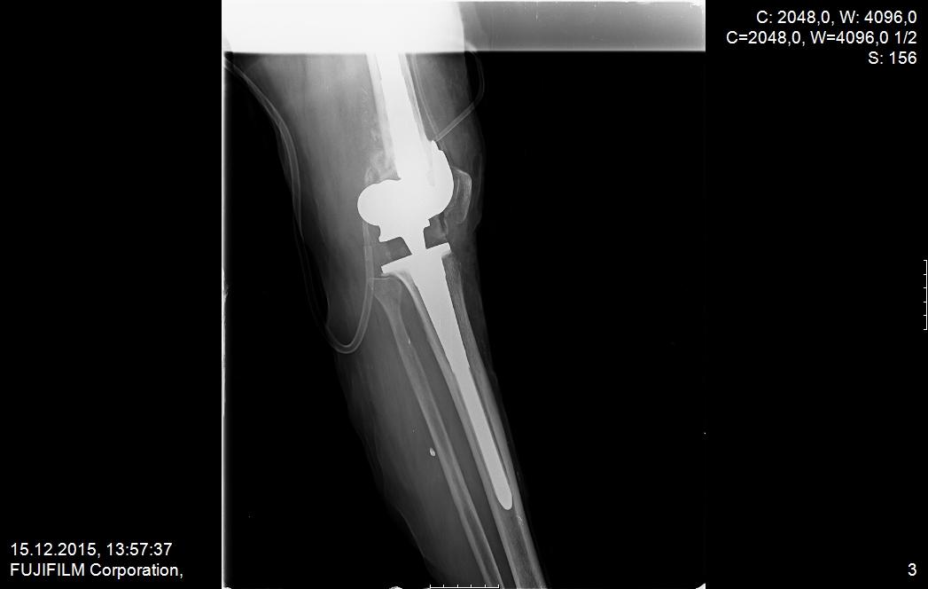 ameliyat sonrası yeni protez 1
