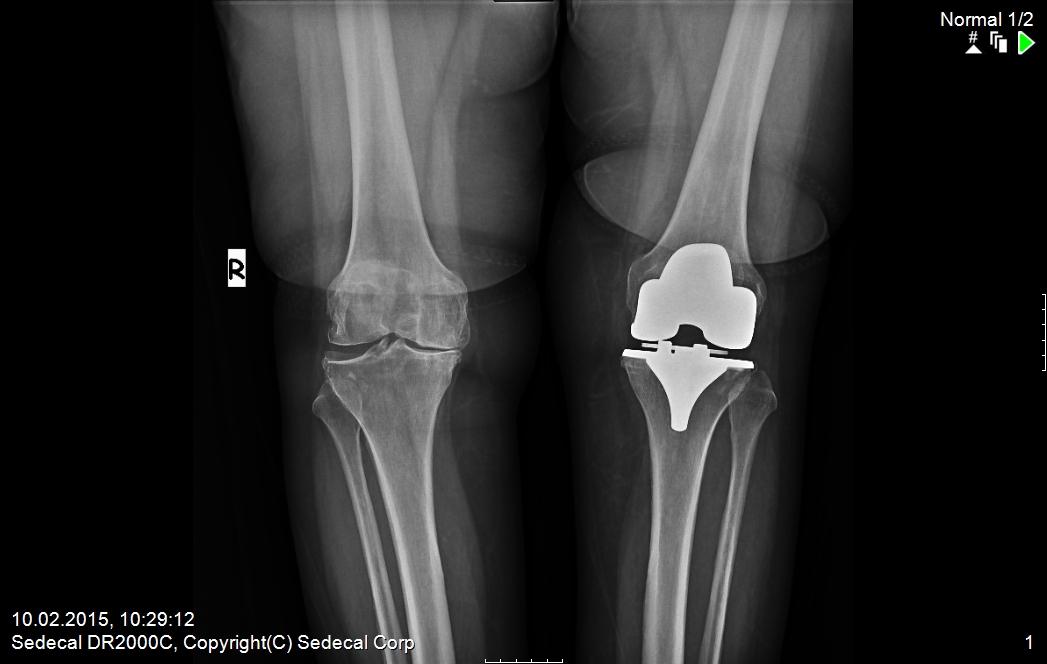 önce sol diz protezi yapıldı